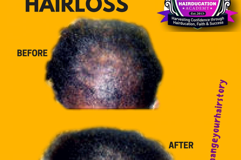 Help I think I have Alopecia – Treatments to regrow hair