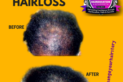 Help I think I have Alopecia – Treatments to regrow hair